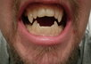 email you detailed instructions to make professional prosthetic teeth that do not require adhesive small2