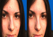 make your five photos wrinkle or acne free using photoshop small1